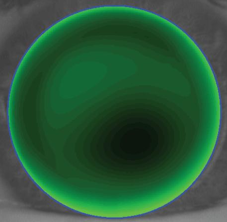 FlexCone adaptation centrale plate -0.1