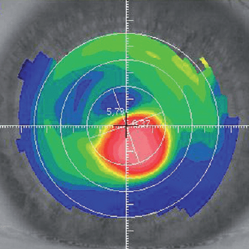Image_topography_AdvancedStageKeratoconus