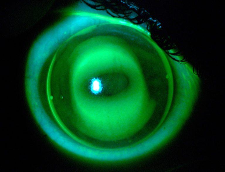 SwissLens Orthokeratology NightFlex