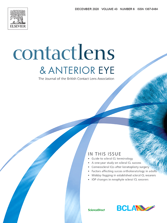 L'associazione di comfort e visione nell'uso di lenti a contatto morbide toriche